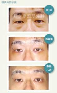 別讓藍光讓眼周藍瘦香菇擺脫眼袋淚溝 三合一手術才是王道
