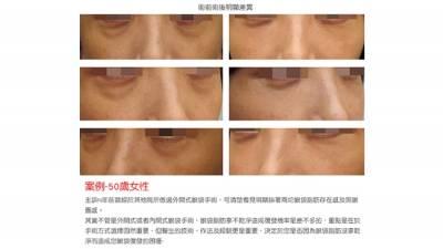 眼袋手術失敗復發!為什麼? 如何重修不復發