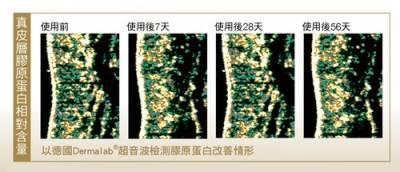 不同療程 不變的鑽石微粒玻尿酸!