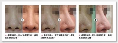 縮鼻頭手術