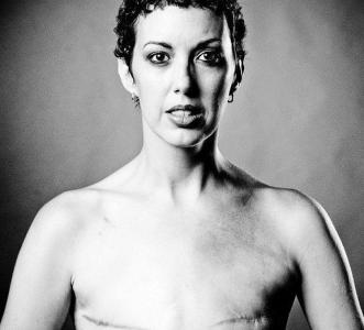 繼安潔莉娜裘莉之後,因乳癌切除胸部的女人(攝影集)