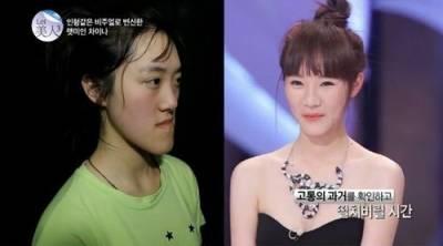 上韓國整容節目大變身,父母認不出
