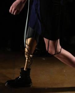 她因衛生棉條失去一條腿,卻用另一條腿單挑世界,稱霸時尚圈!