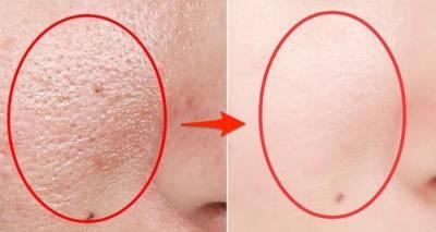女人皮膚「這樣就是有蟎蟲」很多人都以為是皮膚不好!其實只要「這一招」,蟎蟲死光光,皮膚淨透白!