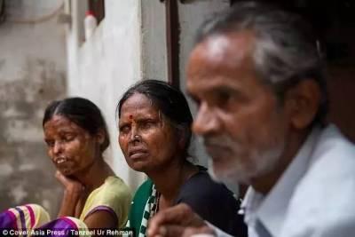 她和女兒被自己丈夫用硫酸毀容...然而最後卻依然回到了他的身邊...