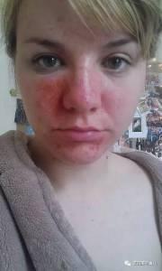 一時手癢,擠破了臉上討厭的痘痘,這個妹子差點連命都丟了...…