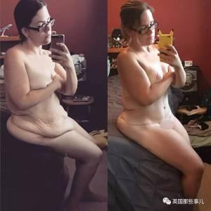 成功減肥,卻留下一身軟塌塌的皮怎麼辦? 她用自己的對比,給我們講述了一切...