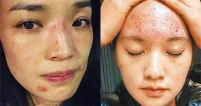 皮膚差不一定是外在保養出問題,壓力才是導致皮膚問題的重要原因