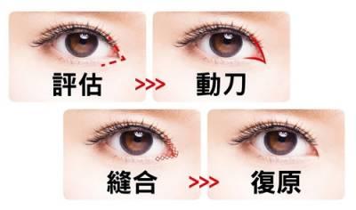 小眼放大 開眼頭手術