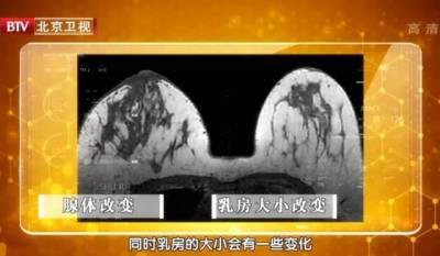 可怕!很多乳腺癌沒有症狀,發現就是晚期!這幾個自測方法一定收好