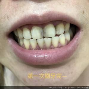 [美齒]定白特 ~牙齒淨白專家x在家也能做牙齒 牙齦全方位護理│讓笑容不再帶有其他色彩~更有自信的展露自然白晳