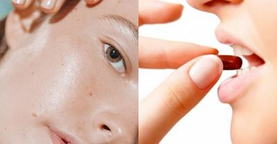 口服A酸能讓油肌變乾肌?專家「這樣」建議,加碼改善3大乾癢後遺症方法