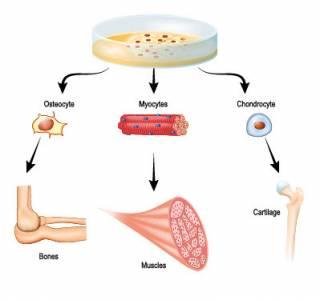 糖尿病傷口難癒合!間質幹細胞移植可免截肢