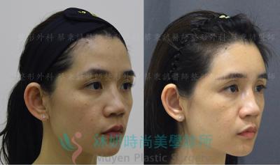 戴上口罩反讓老態皺額頭成焦點?『洢蓮絲豐額』微整近期主流