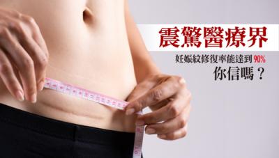 震驚醫療界!妊娠紋修復率能達到90 ,你信嗎?