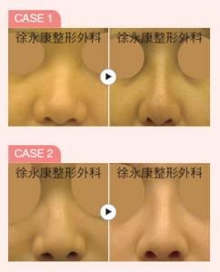 新式韓式隆鼻術,打造美形俏鼻有一套│整形達人雜誌