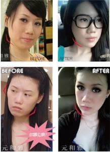 變臉工程 複合式削骨手術│整形達人雜誌