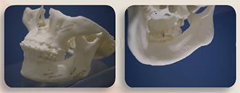3D列印技術導航 削骨更快更精準│整形達人雜誌