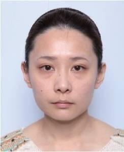 韓國皮膚科大老們心目中最好的填充物?