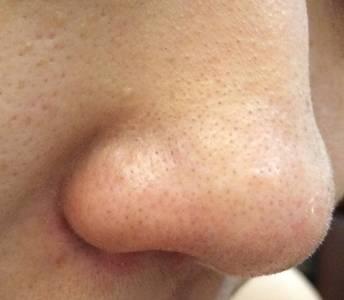 擊退惱人的「夏毛孔」!鼻頭 兩頰一次解決!│VoCE