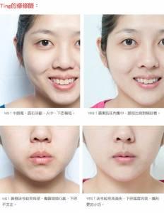 齒列發育不足,影響下半臉的黃金比例!│整形達人雜誌