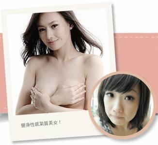 可愛女變身氣質女 自然微調展現自信美│整形達人雜誌