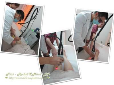 【亞歷山大除毛雷射】第一次除小腿毛就上手❤雅偲高榮廷醫師