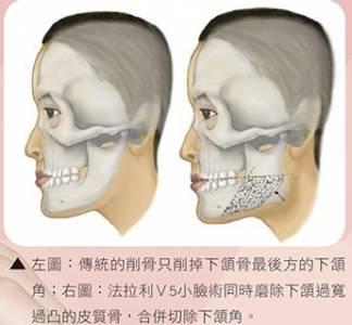 法拉利V5小臉術告別本壘板臉型 │整形達人雜誌