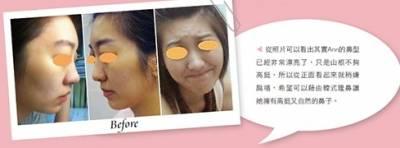 韓式隆鼻 打造精緻立體五官│整形達人雜誌