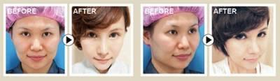 想要的臉型,妳自己決定!│整形達人雜誌