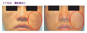 有效治療青春痘之後惱人的痘疤和凹洞! 健康達人網