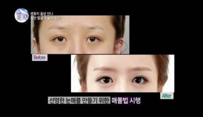 神一般的韓國整型技術,雙胞胎姐妹的美麗蛻變