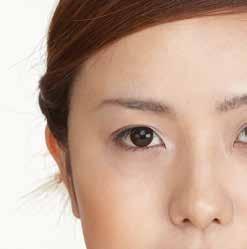惱人的黑眼圈,用刮痧就能輕鬆變美麗 《刮痧美人書》│凱特文化
