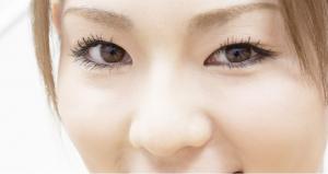 如何去黑眼圈 先看你的黑眼圈類型