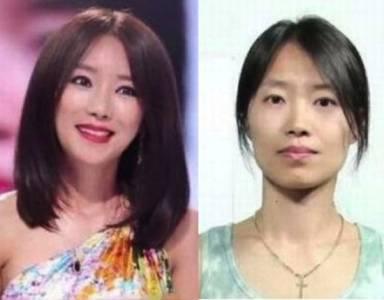報復丈夫! 南韓醜婦進行整容變女神!