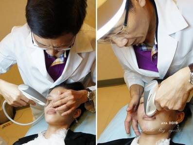 【醫美】新機入替給我雙效合一的e美萃水滴電波就是要拉提小臉揮開細紋惱人痘疤