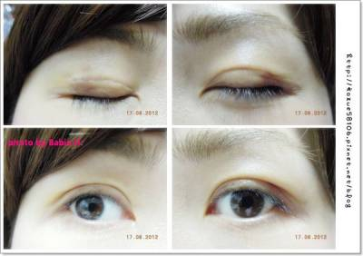 【醫美】我也要有雙眼皮!手術中傳。京硯醫美