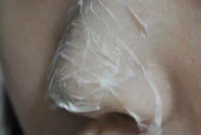 讓鼻子細膩光滑潔白無暇的10大秘方!據說 SK2神仙水就是取自這個祕方的!