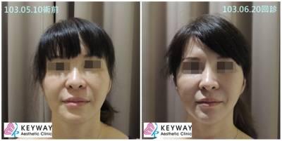 別讓壓力洩漏臉部年齡! 「好命臉」回春養成術3tips大公開