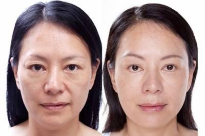 3大首例‧創造臉部精雕奇蹟 皮膚專科親解美麗young傳說