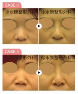 卡麥拉隆鼻術打造韓式名品鼻│整形達人雜誌