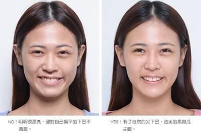 復刻日本超模的巴掌臉,自然的尖下巴是關鍵│整形達人雜誌