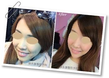 完美臉型從下巴開始 墊下巴手術│整形達人雜誌