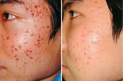 臉蛋的救星來了!六種教你簡單修復臉上痘坑!一周立刻變美麗!