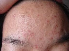 如何一夜去除臉上痘痘?這招「戰痘神技」居然能快速激活人體排毒能力,真的超神!