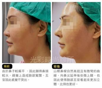 女神推手 再造完美鼻型!打造如微女神般的完美鼻例|醫美時尚