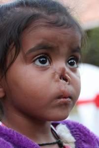 感動!親生父母棄她於森林,蟲子吃了她的鼻,但這個女人,卻第一眼看到她就說要她!