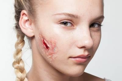 著名的傷痕實驗!看完我嚇到了!