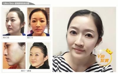 光老化退散 Ultra Skin超極限音波拉提 救救盛夏曝曬肌