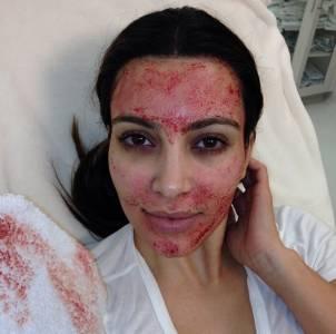 恐怖喔~ 最新醫美科技「吸血鬼隆胸術」::首先要把你的血液抽出來,然後再注入...只能說愛美是要付出代價的!